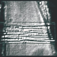 Common Tests Performed on Muscles Using SI-H Systems